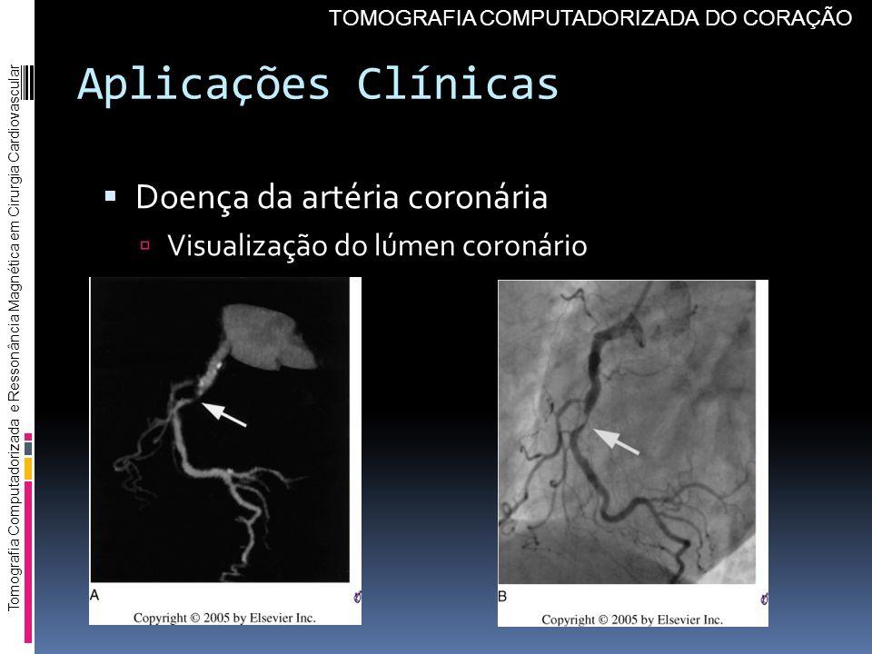 Aplicações Clínicas Doença da artéria coronária Visualização do lúmen coronário Tomografia Computadorizada e Ressonância Magnética em Cirurgia Cardiov