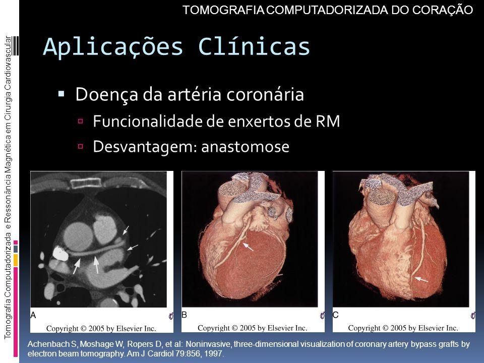 Aplicações Clínicas Doença da artéria coronária Funcionalidade de enxertos de RM Desvantagem: anastomose Tomografia Computadorizada e Ressonância Magn