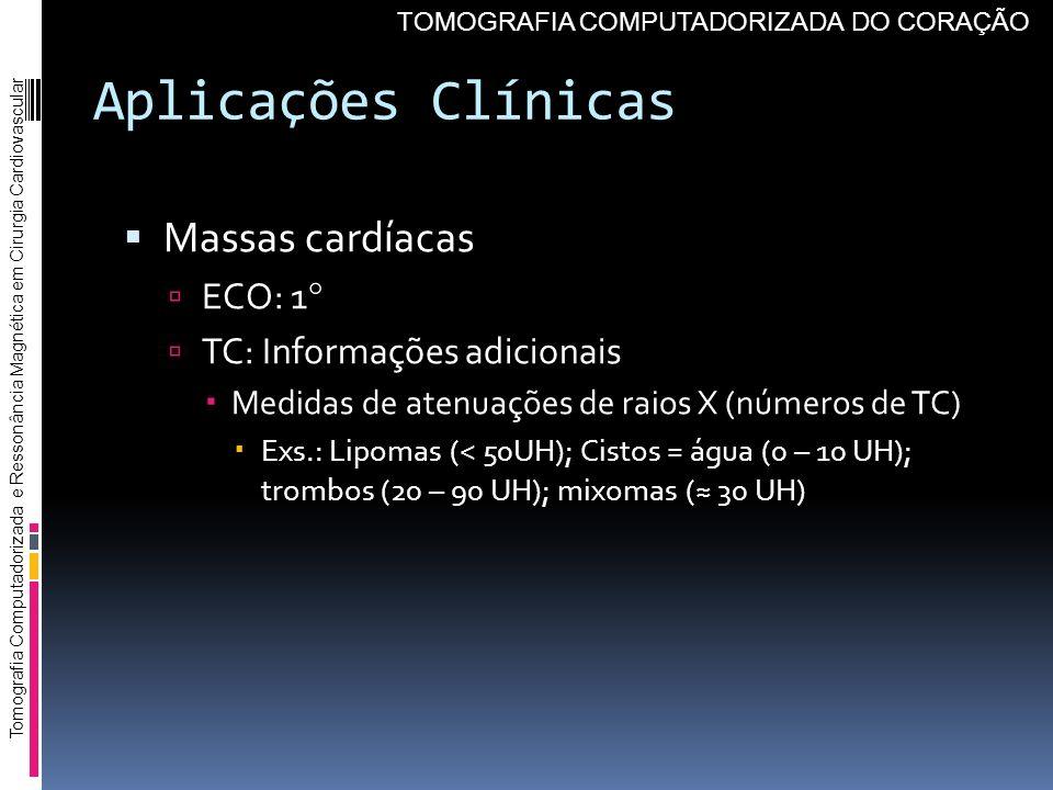 Aplicações Clínicas Massas cardíacas ECO: 1 TC: Informações adicionais Medidas de atenuações de raios X (números de TC) Exs.: Lipomas (< 50UH); Cistos