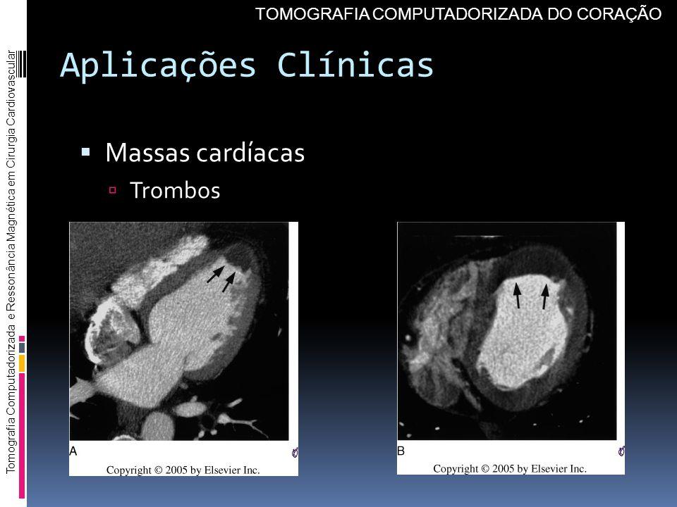 Aplicações Clínicas Massas cardíacas Trombos Tomografia Computadorizada e Ressonância Magnética em Cirurgia Cardiovascular TOMOGRAFIA COMPUTADORIZADA