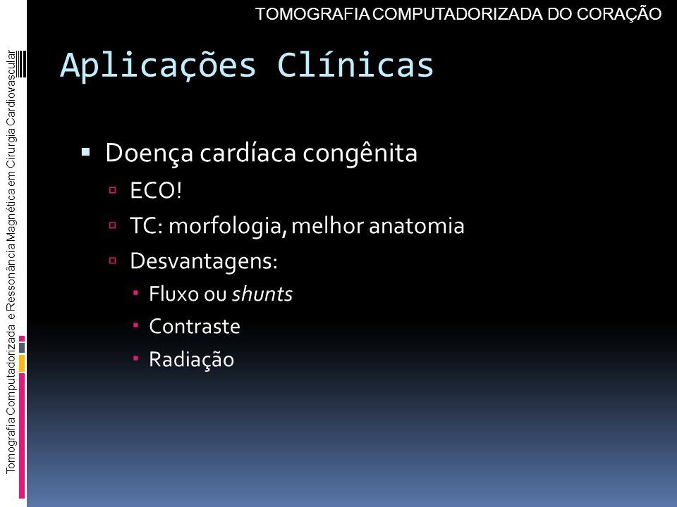Aplicações Clínicas Doença cardíaca congênita ECO! TC: morfologia, melhor anatomia Desvantagens: Fluxo ou shunts Contraste Radiação Tomografia Computa