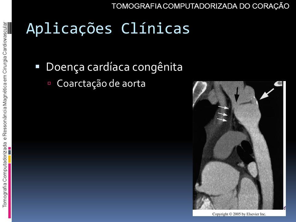 Aplicações Clínicas Doença cardíaca congênita Coarctação de aorta Tomografia Computadorizada e Ressonância Magnética em Cirurgia Cardiovascular TOMOGR