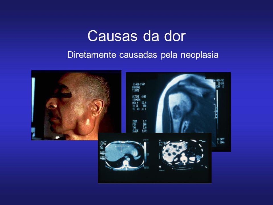 Causas da dor Diretamente causadas pela neoplasia