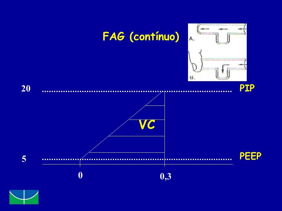 FAG (contínuo) 20 5 0 0,3 PIP PEEP VC