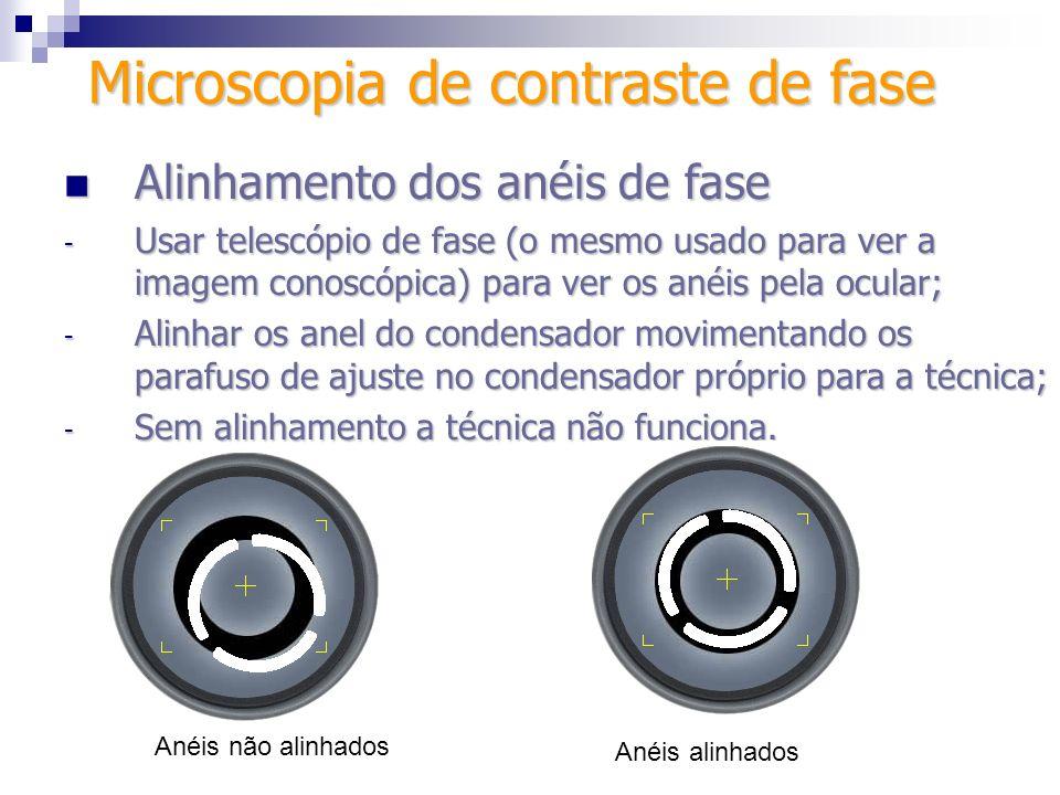 Alinhamento dos anéis de fase Alinhamento dos anéis de fase - Usar telescópio de fase (o mesmo usado para ver a imagem conoscópica) para ver os anéis
