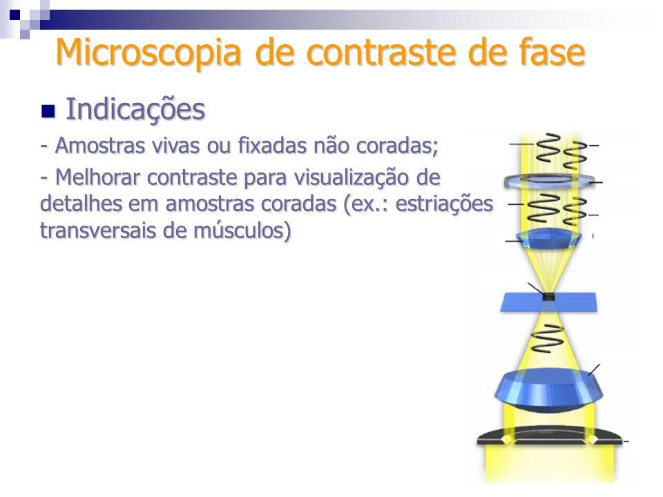 Indicações Indicações - Amostras vivas ou fixadas não coradas; - Melhorar contraste para visualização de detalhes em amostras coradas (ex.: estriações