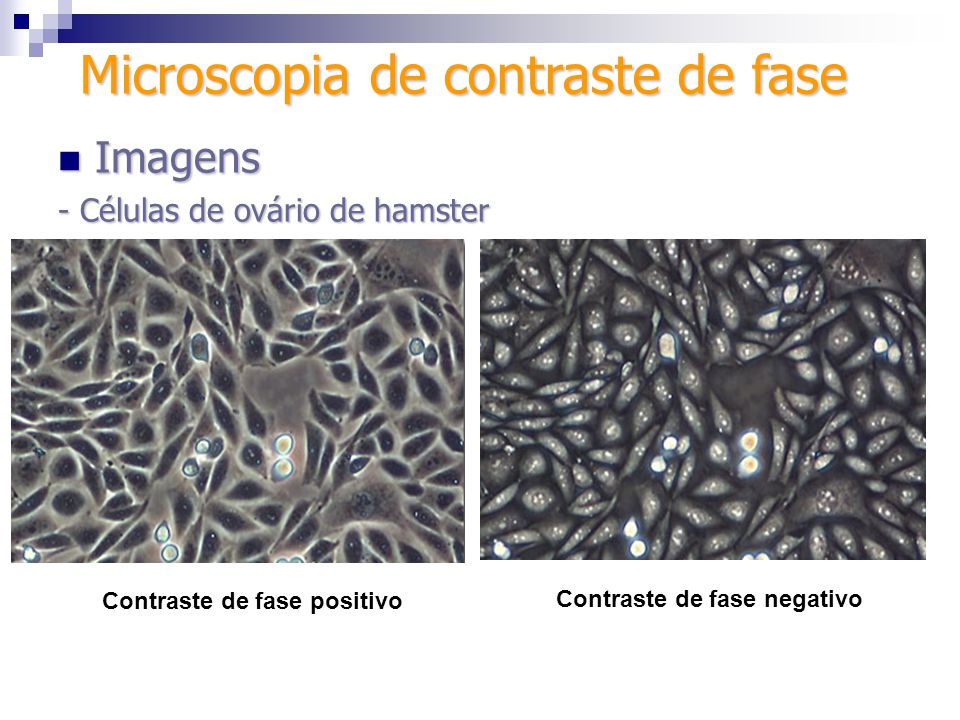Microscopia de contraste de fase Contraste de fase positivo Contraste de fase negativo Imagens Imagens - Células de ovário de hamster