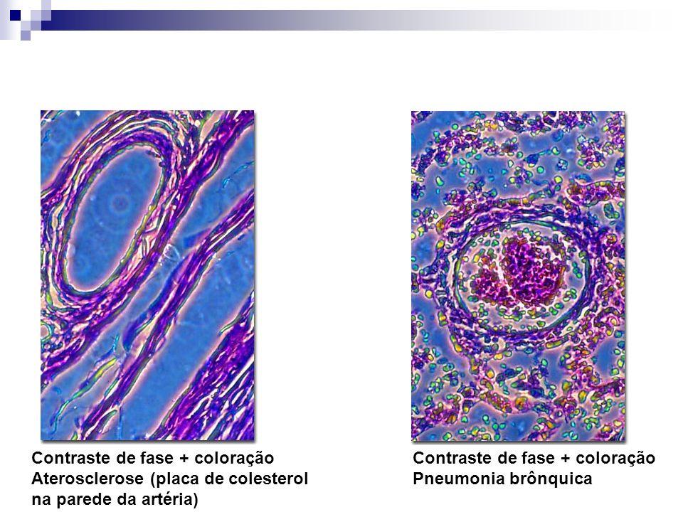 Contraste de fase + coloração Aterosclerose (placa de colesterol na parede da artéria) Contraste de fase + coloração Pneumonia brônquica