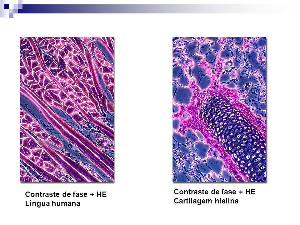 Contraste de fase + HE Língua humana Contraste de fase + HE Cartilagem hialina