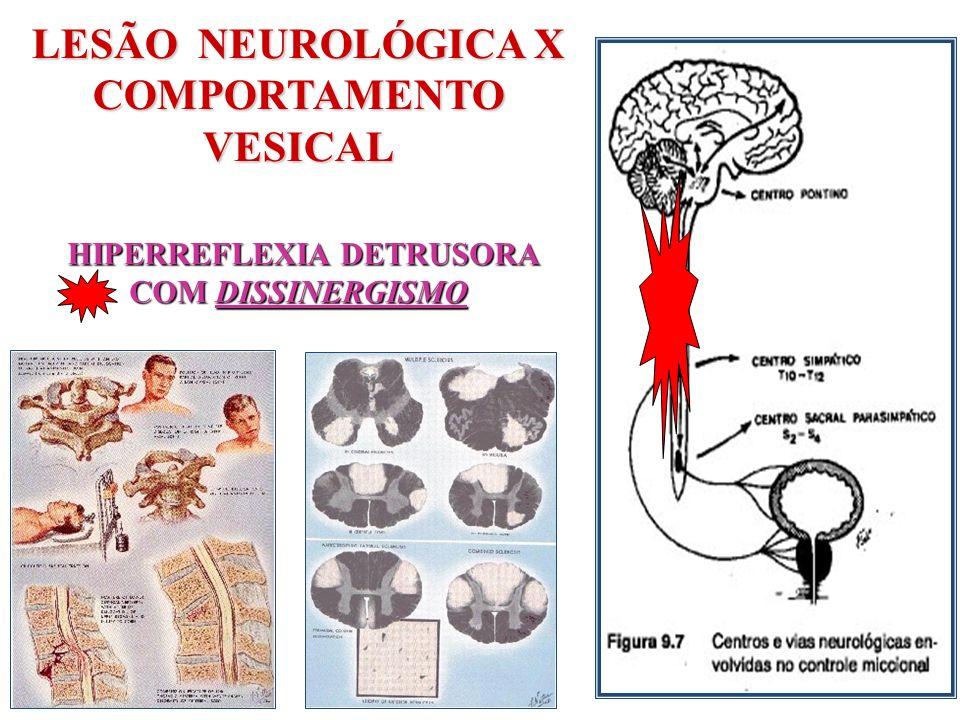 LESÃO NEUROLÓGICA X COMPORTAMENTO VESICAL HIPERREFLEXIA DETRUSORA COM DISSINERGISMO HIPERREFLEXIA DETRUSORA COM DISSINERGISMO