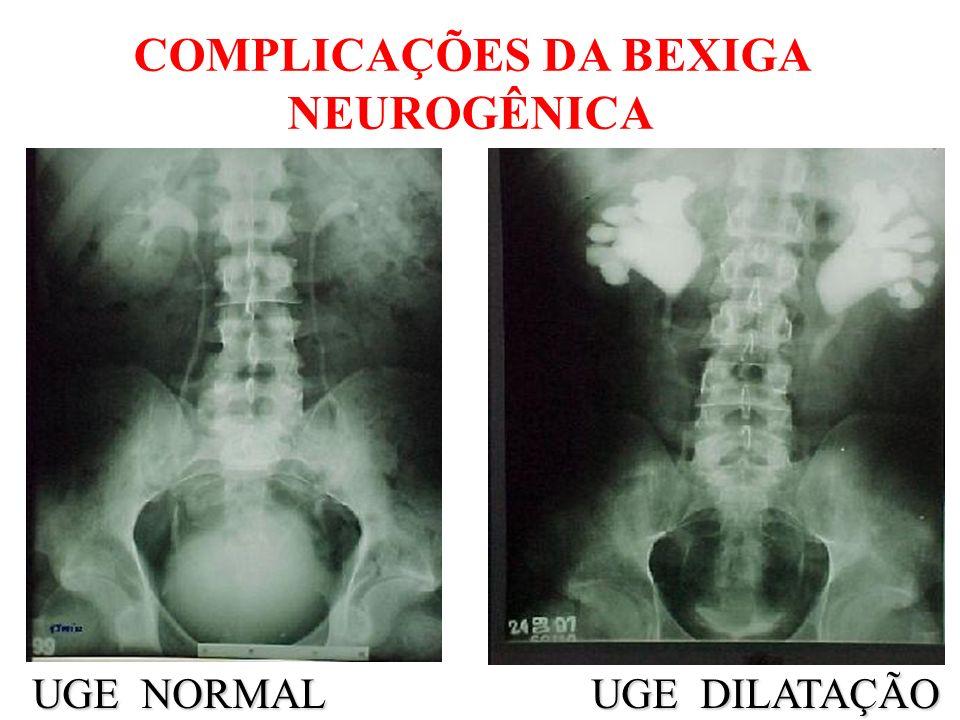 COMPLICAÇÕES DA BEXIGA NEUROGÊNICA UGE NORMAL UGE DILATAÇÃO UGE NORMAL UGE DILATAÇÃO