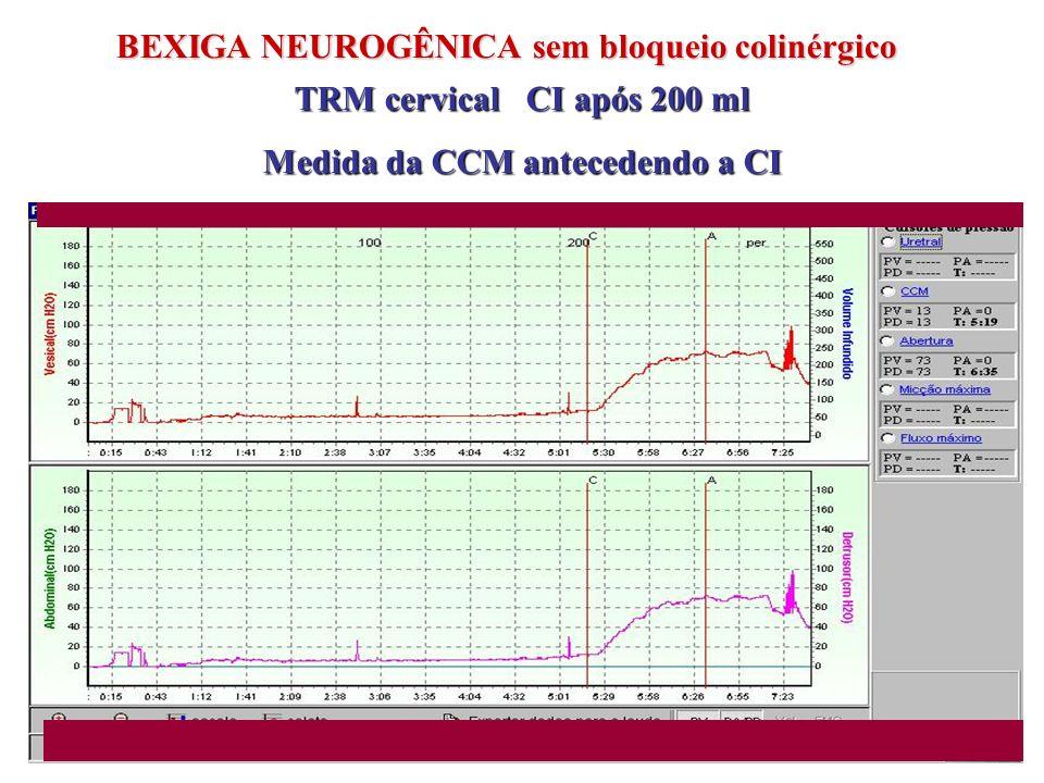 BEXIGA NEUROGÊNICA sem bloqueio colinérgico TRM cervical CI após 200 ml Medida da CCM antecedendo a CI