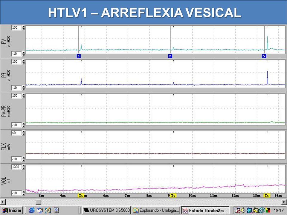 HTLV1 – ARREFLEXIA VESICAL