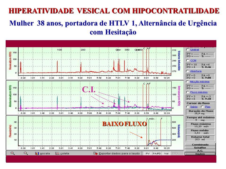 HIPERATIVIDADE VESICAL COM HIPOCONTRATILIDADE Mulher 38 anos, portadora de HTLV 1, Alternância de Urgência com Hesitação C.I. BAIXO FLUXO