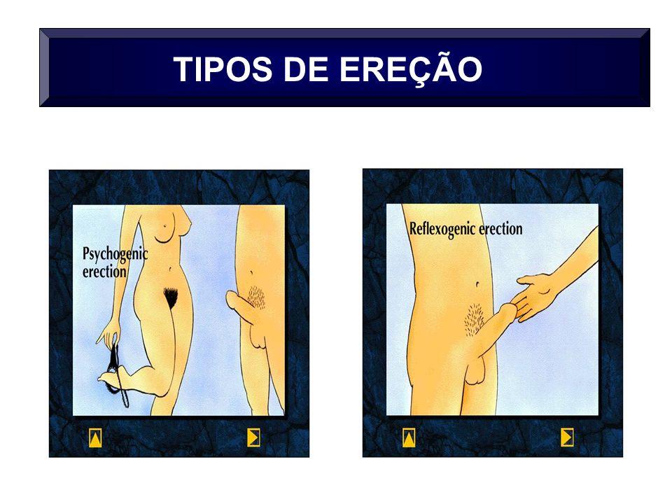 TIPOS DE EREÇÃO