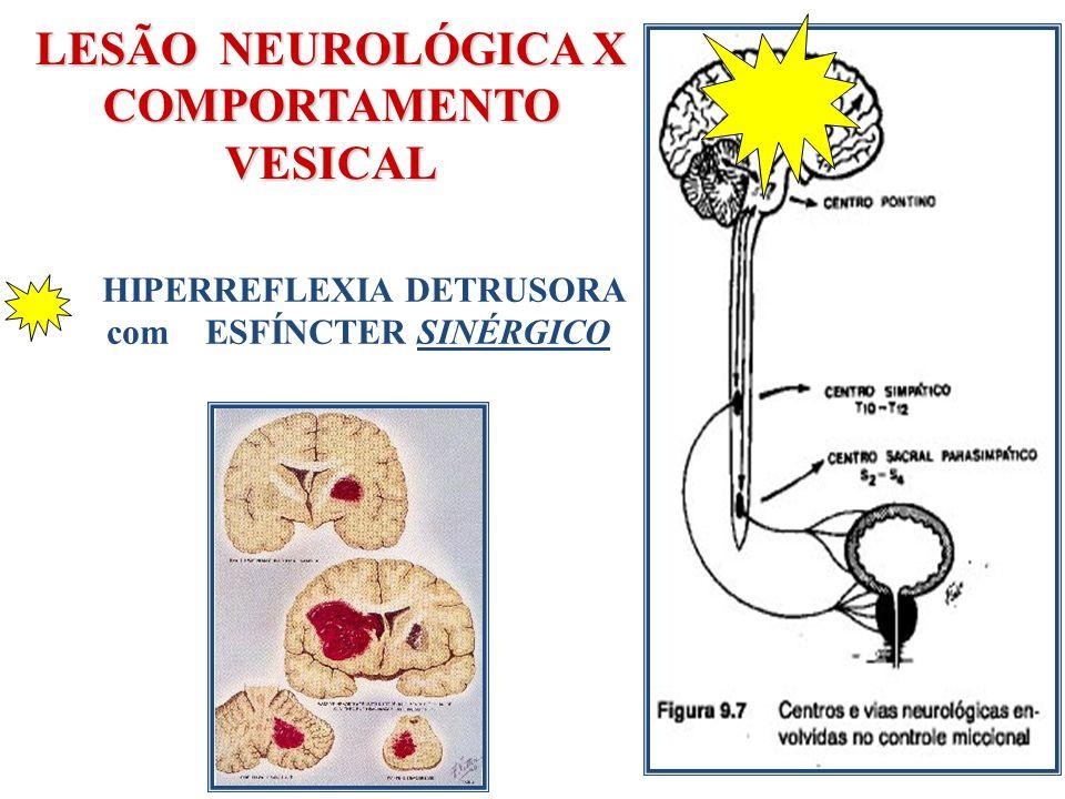LESÃO NEUROLÓGICA X COMPORTAMENTO VESICAL HIPERREFLEXIA DETRUSORA com ESFÍNCTER SINÉRGICO
