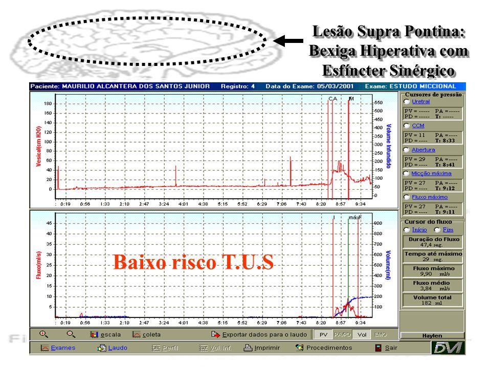 Lesão Supra Pontina: Bexiga Hiperativa com Esfíncter Sinérgico Baixo risco T.U.S