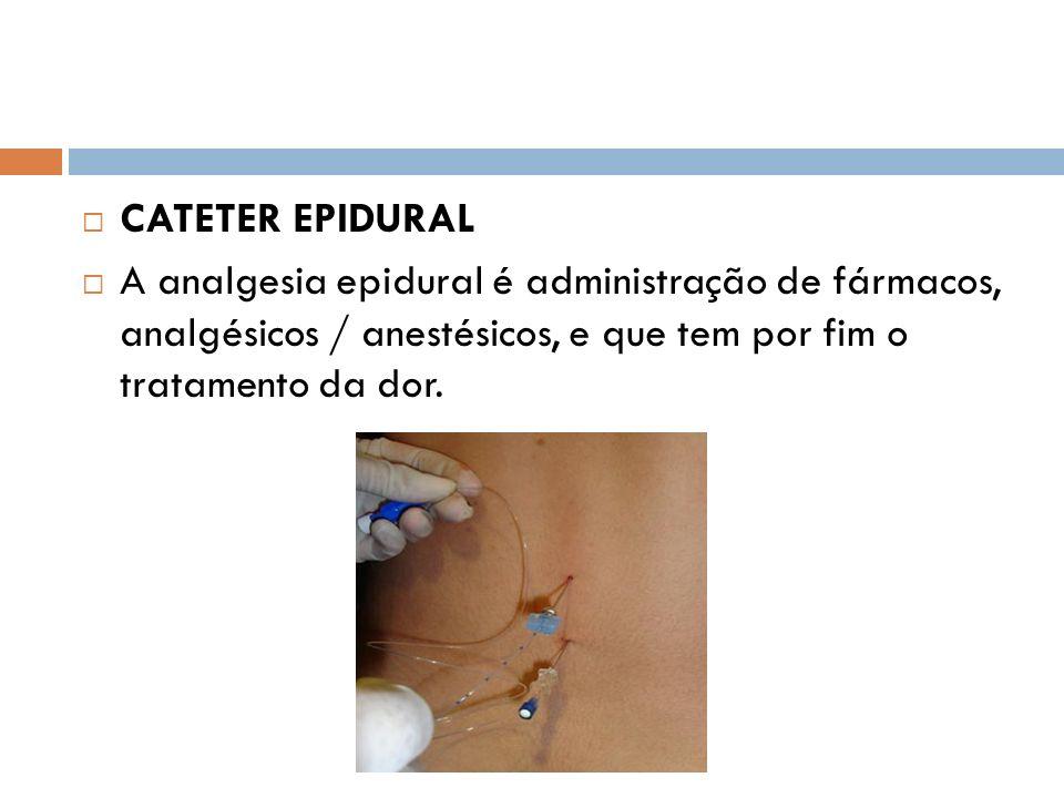 CATETER EPIDURAL A analgesia epidural é administração de fármacos, analgésicos / anestésicos, e que tem por fim o tratamento da dor.