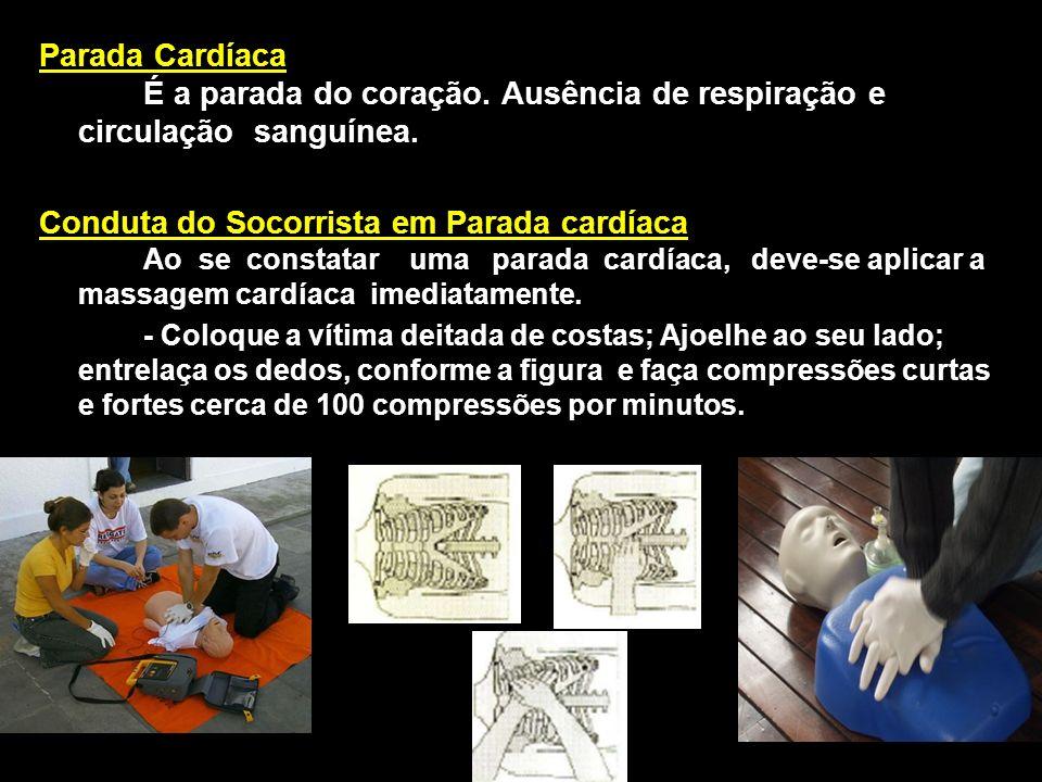 Parada Cardíaca É a parada do coração. Ausência de respiração e circulação sanguínea. Conduta do Socorrista em Parada cardíaca Ao se constatar uma par