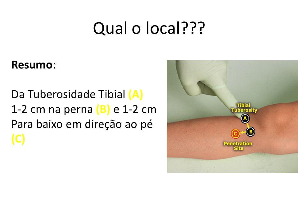 Qual o local??? Resumo: Da Tuberosidade Tibial (A) 1-2 cm na perna (B) e 1-2 cm Para baixo em direção ao pé (C)