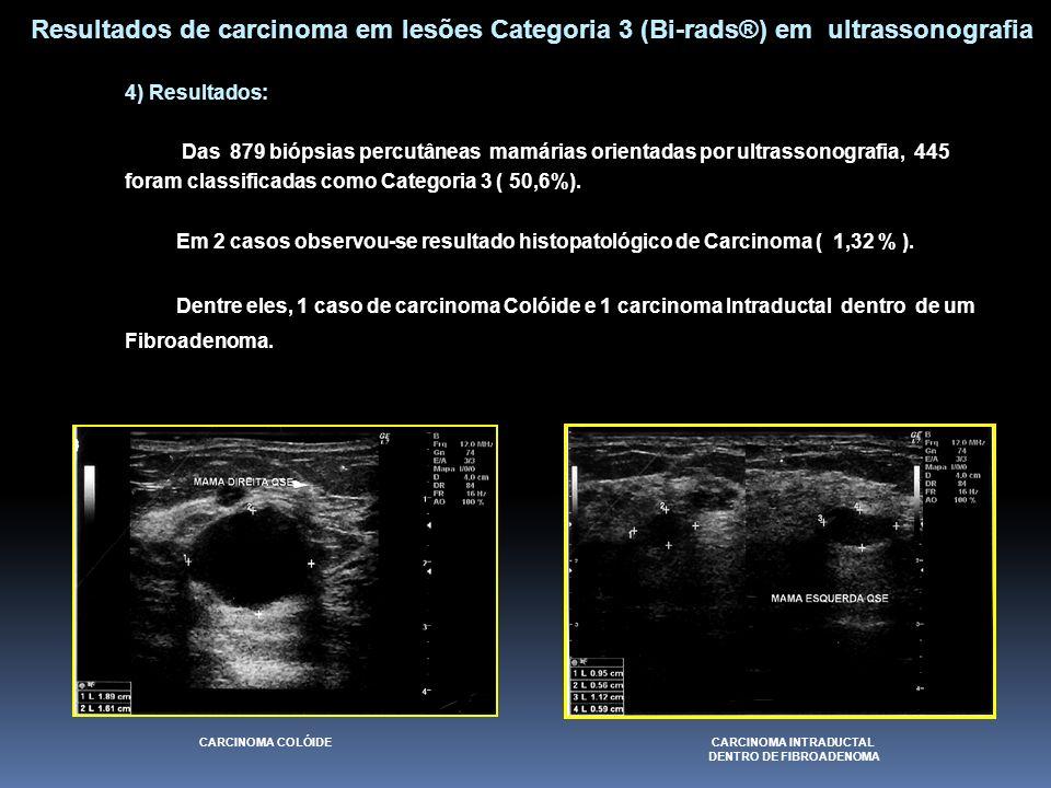 4) Resultados: Das 879 biópsias percutâneas mamárias orientadas por ultrassonografia, 445 foram classificadas como Categoria 3 ( 50,6%). Em 2 casos ob