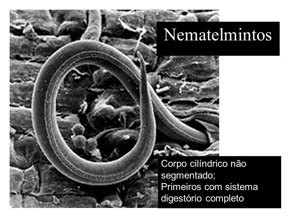 Nematelmintos Corpo cilíndrico não segmentado; Primeiros com sistema digestório completo