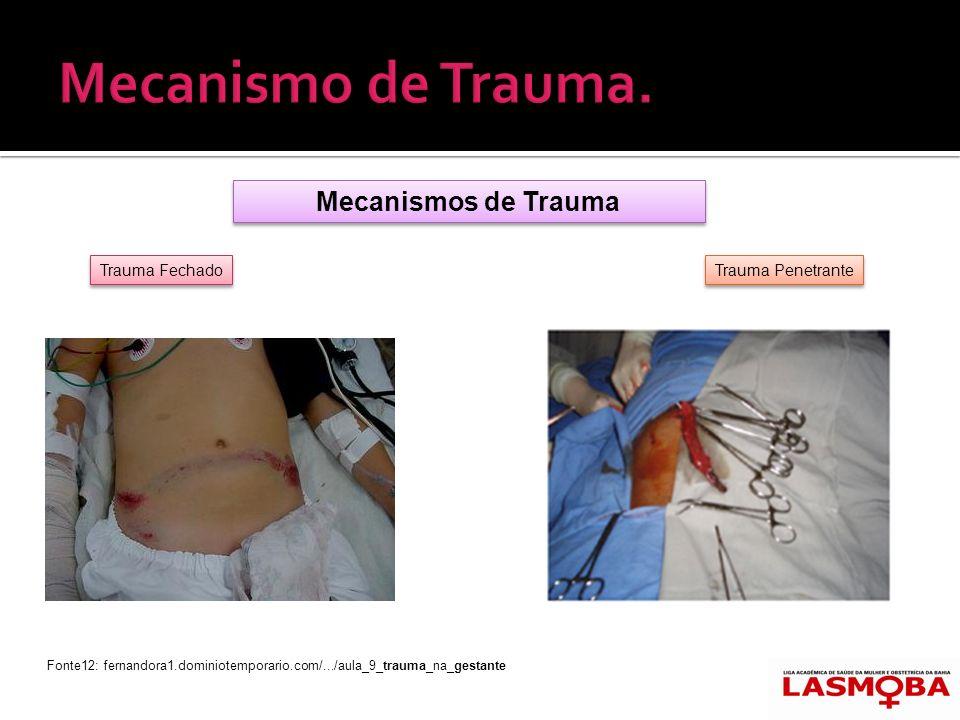 Mecanismos de Trauma Trauma Fechado Trauma Penetrante Fonte12: fernandora1.dominiotemporario.com/.../aula_9_trauma_na_gestante