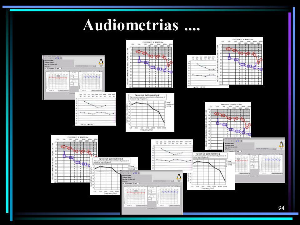 94 Audiometrias....