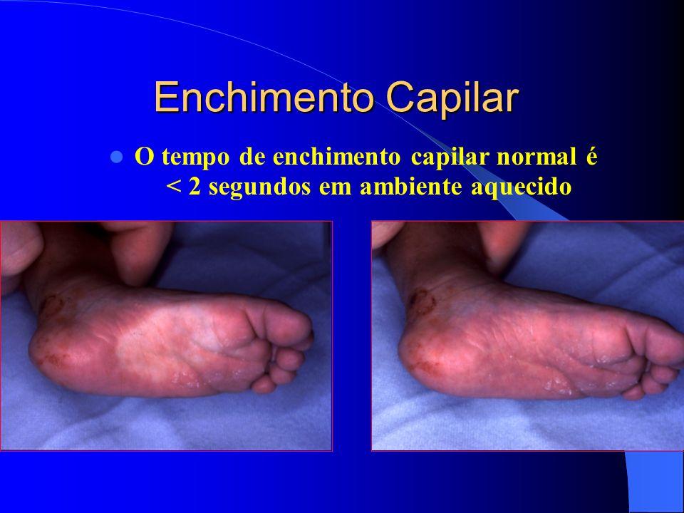 Enchimento Capilar O tempo de enchimento capilar normal é < 2 segundos em ambiente aquecido