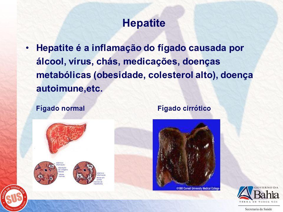 Hepatite Hepatite é a inflamação do fígado causada por álcool, vírus, chás, medicações, doenças metabólicas (obesidade, colesterol alto), doença autoi