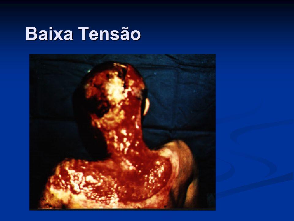 As fotos em anexo são relativas a um acidente com um eletricista em uma concessionária de energia nos Estados Unidos.