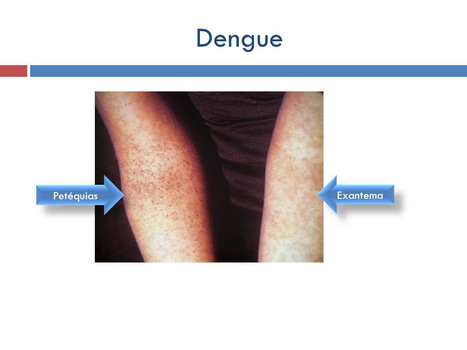 Dengue Exantema Petéquias