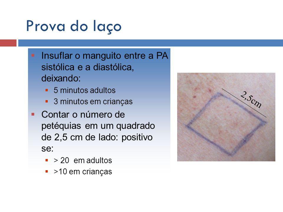 Prova do laço 2,5cm Insuflar o manguito entre a PA sistólica e a diastólica, deixando: 5 minutos adultos 3 minutos em crianças Contar o número de peté