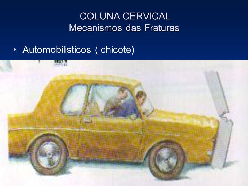 COLUNA CERVICAL Mecanismos das Fraturas COLUNA CERVICAL Mecanismos das Fraturas Automobilisticos ( chicote)