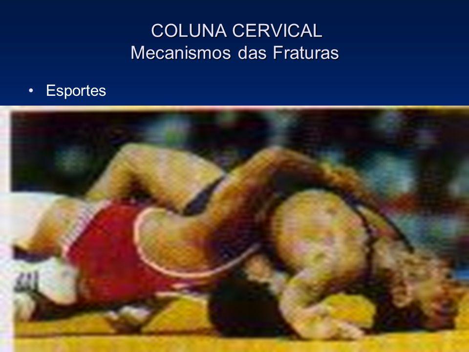 COLUNA CERVICAL Mecanismos das Fraturas COLUNA CERVICAL Mecanismos das Fraturas Esportes