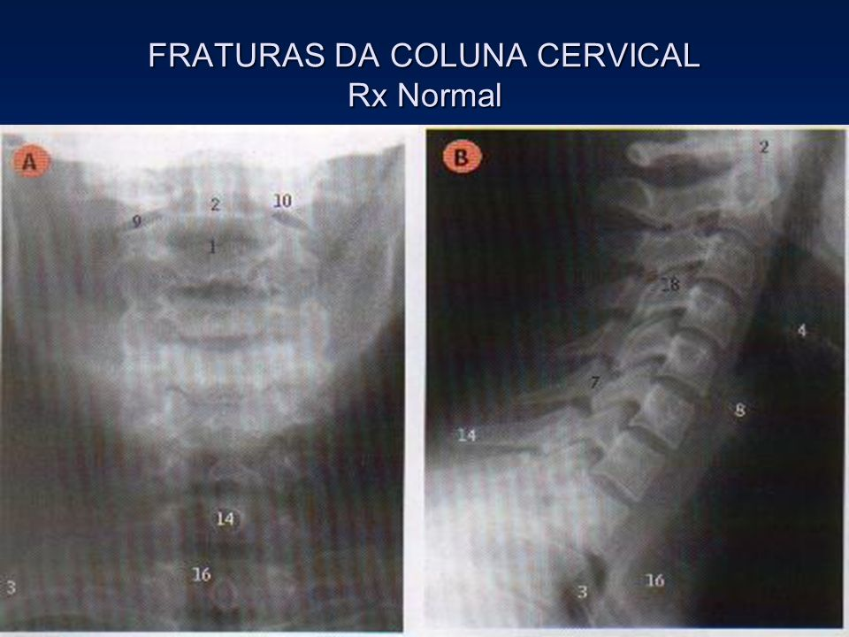 FRATURAS DA COLUNA CERVICAL Rx Normal