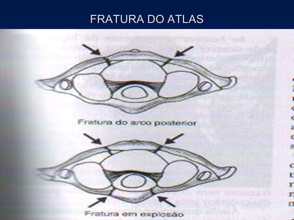 FRATURA DO ATLAS