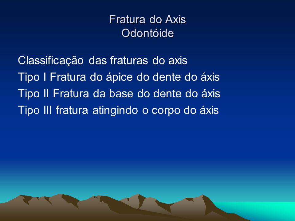 Fratura do Axis Odontóide Classificação das fraturas do axis Tipo I Fratura do ápice do dente do áxis Tipo II Fratura da base do dente do áxis Tipo II