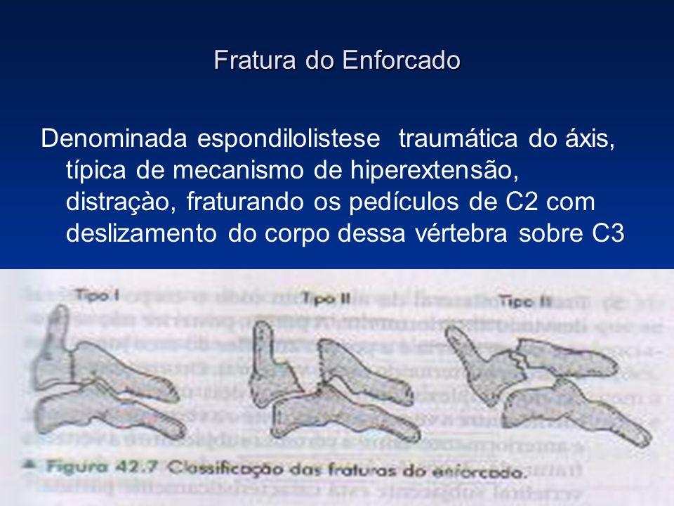 Fratura do Enforcado Denominada espondilolistese traumática do áxis, típica de mecanismo de hiperextensão, distraçào, fraturando os pedículos de C2 co