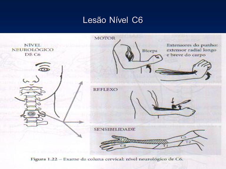 Lesão Nível C6