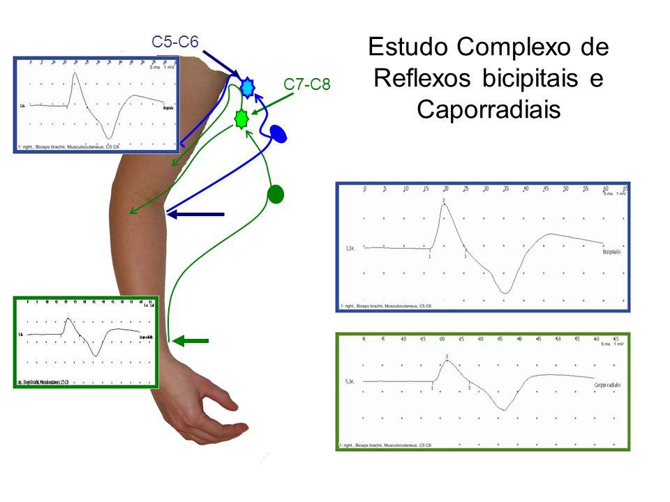 Estudo Complexo de Reflexos bicipitais e Caporradiais С5-С6 С7-С8