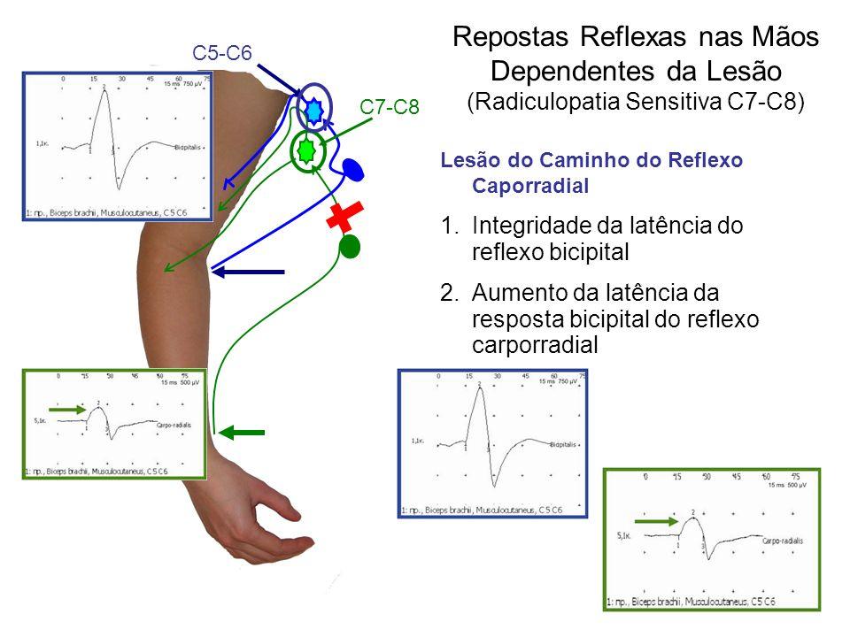 Lesão do Caminho do Reflexo Caporradial 1.Integridade da latência do reflexo bicipital 2.Aumento da latência da resposta bicipital do reflexo carporra