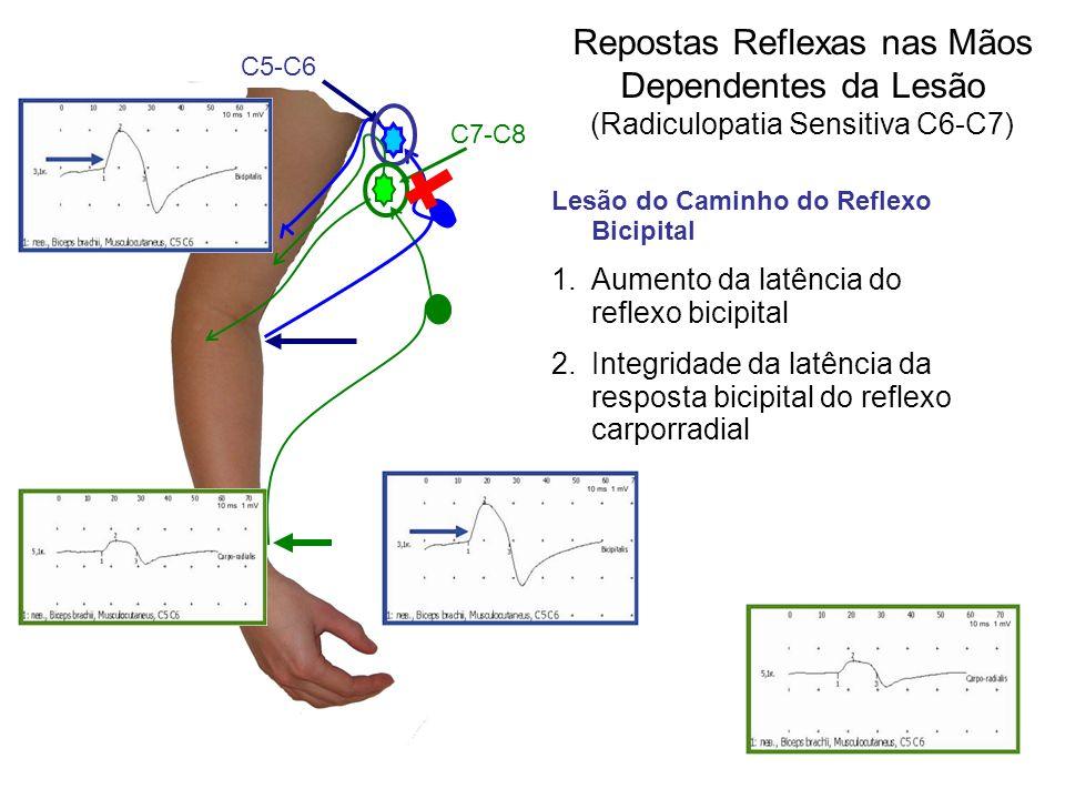 Repostas Reflexas nas Mãos Dependentes da Lesão (Radiculopatia Sensitiva С6-С7) Lesão do Caminho do Reflexo Bicipital 1.Aumento da latência do reflexo