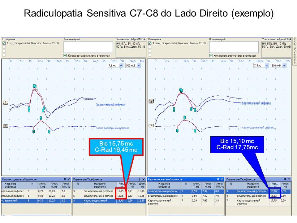 Radiculopatia Sensitiva С7-С8 do Lado Direito (exemplo) Bic 15,75 mc C-Rad 19,45 mc Bic 15,10 mc C-Rad 17,75mc
