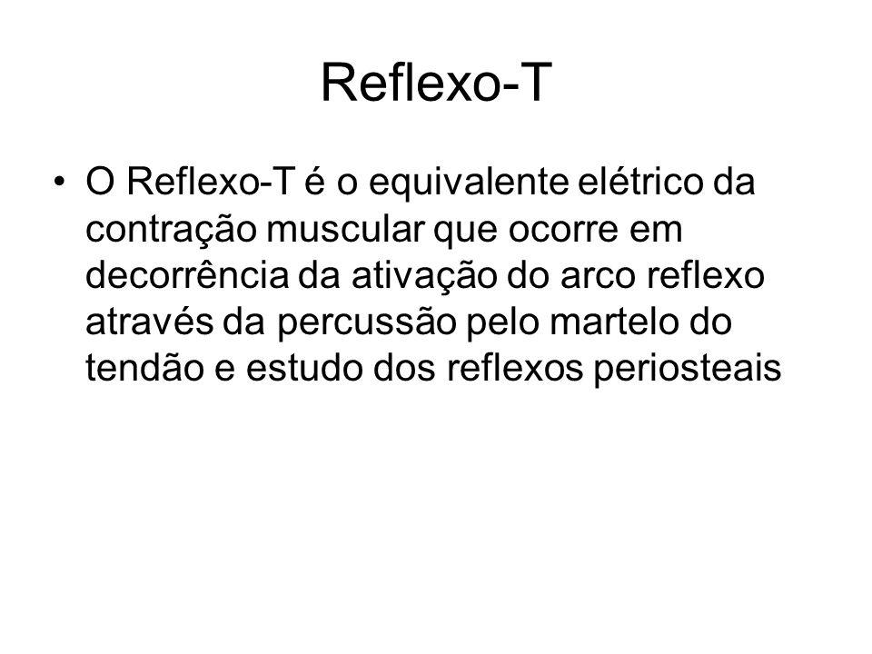Reflexo-T O Reflexo-T é o equivalente elétrico da contração muscular que ocorre em decorrência da ativação do arco reflexo através da percussão pelo m