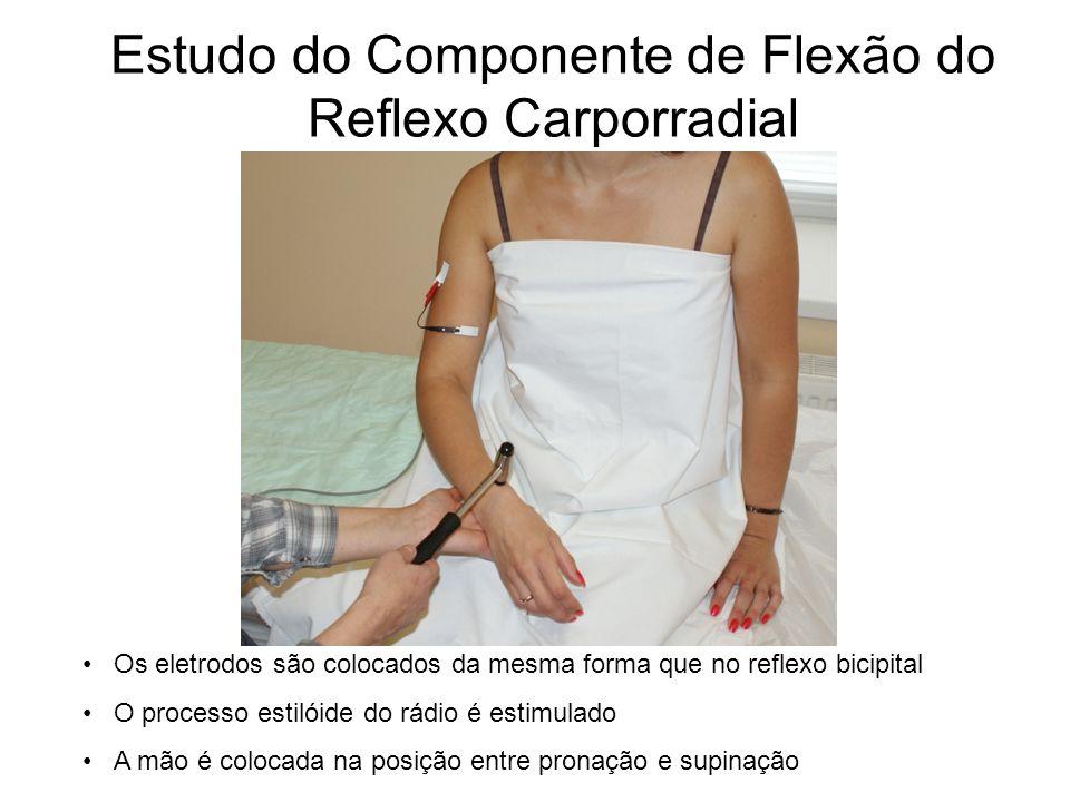 Estudo do Componente de Flexão do Reflexo Carporradial Os eletrodos são colocados da mesma forma que no reflexo bicipital O processo estilóide do rádi