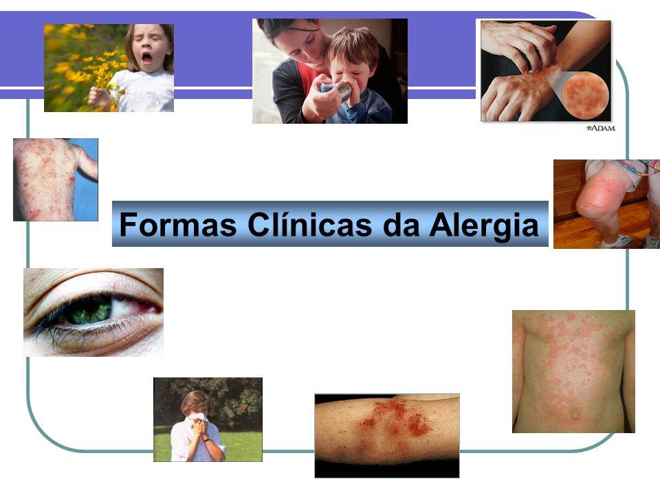 Formas Clínicas da Alergia