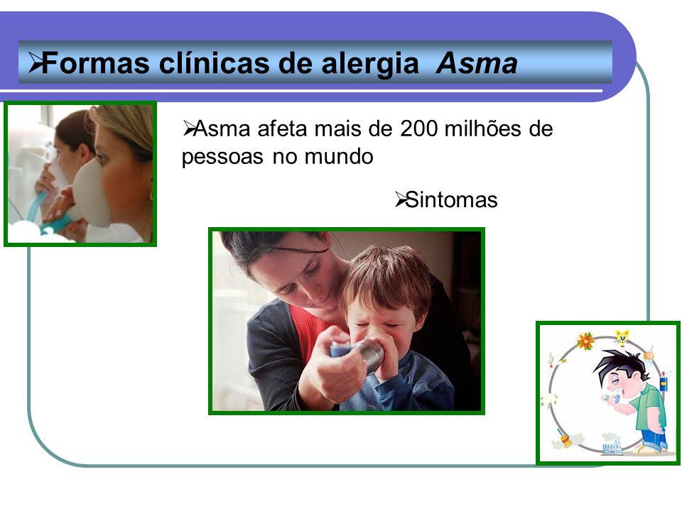 Asma afeta mais de 200 milhões de pessoas no mundo Formas clínicas de alergia Asma Sintomas