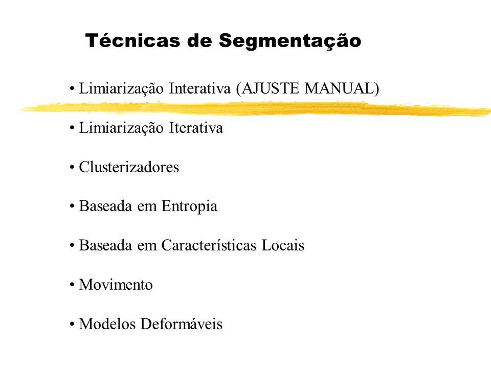 Técnicas de Segmentação Limiarização Interativa (AJUSTE MANUAL) Limiarização Iterativa Clusterizadores Baseada em Entropia Baseada em Características Locais Movimento Modelos Deformáveis