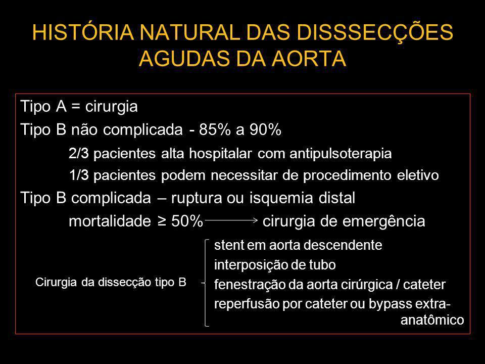 HISTÓRIA NATURAL DAS DISSSECÇÕES AGUDAS DA AORTA Tipo A = cirurgia Tipo B não complicada - 85% a 90% 2/3 pacientes alta hospitalar com antipulsoterapi